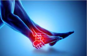 آرتروز پا و درمان آن