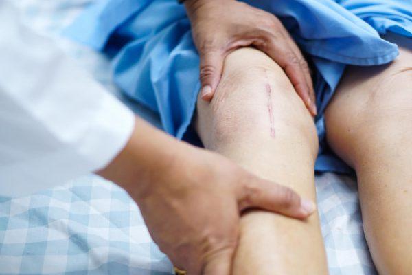 بعد از عمل تعویض مفصل زانو چه باید کرد؟
