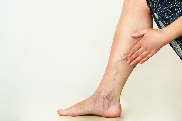 علت درد پا از زانو به پایین و رگ واریسی