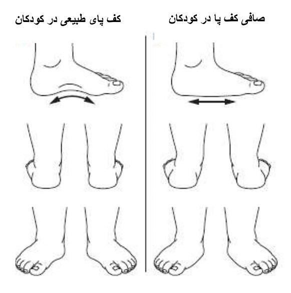 تصویر نقاشی پای کودک طبیعی و صافی کف پا در کودکان