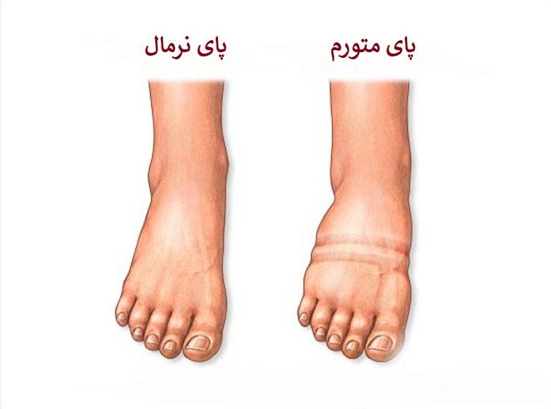 ورم پای چپ