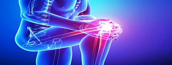 علائم آرتروز زانو در زنان