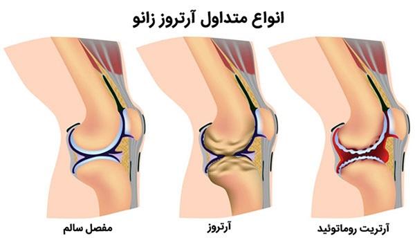 آرتروز و مشکلات مفصلی