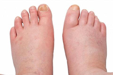 ورم پا در بیماران سرطانی