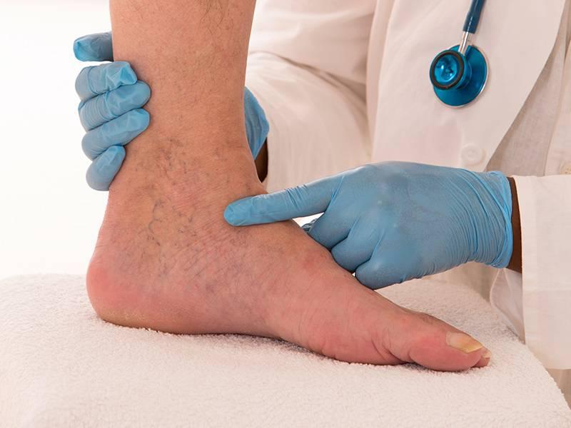 6 درمان ورم پا در اثر ضربه
