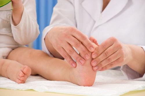 تشخیص کف پای صاف در کودکان
