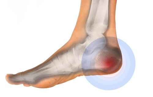 درد پاشنه پاها نشانه چیست؟