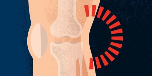 درد پشت زانو