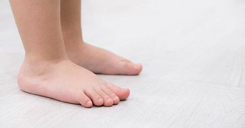 کف پای صاف در کودکان